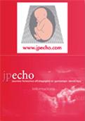 JP-ECHO